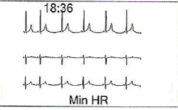 holter-2