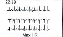 holter-3