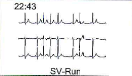 holter-4